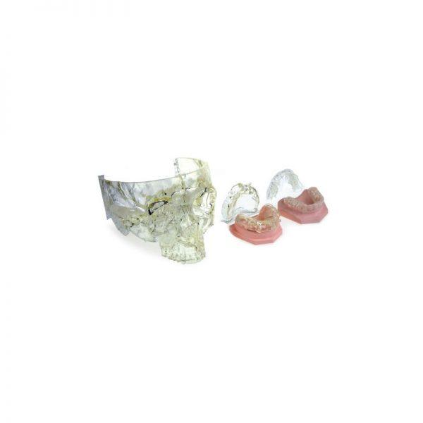 ds3000 xfab shampemode resine cartucce sla stereolitografia teschio e stampa 3d denti