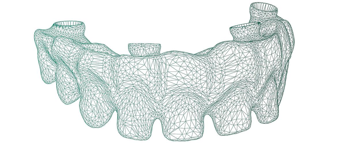 mesh dentale scanner 3d