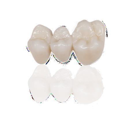 TEMPORIS PHOTOSHADE denti